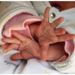 Na czym polegają badania prenatalne?